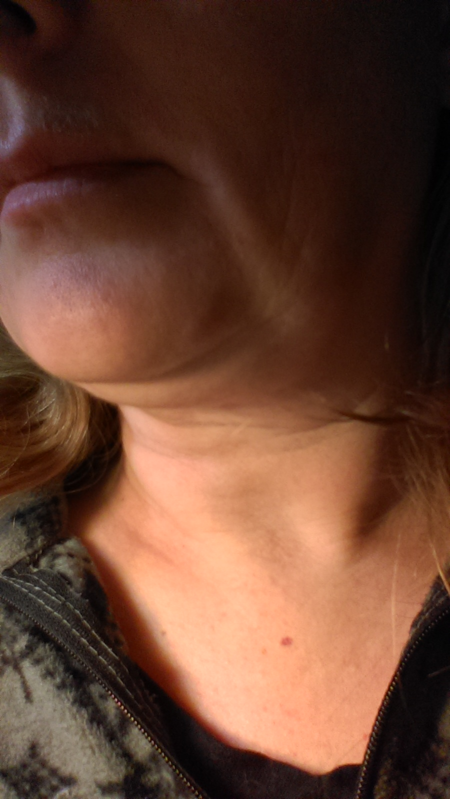 red marks on neck