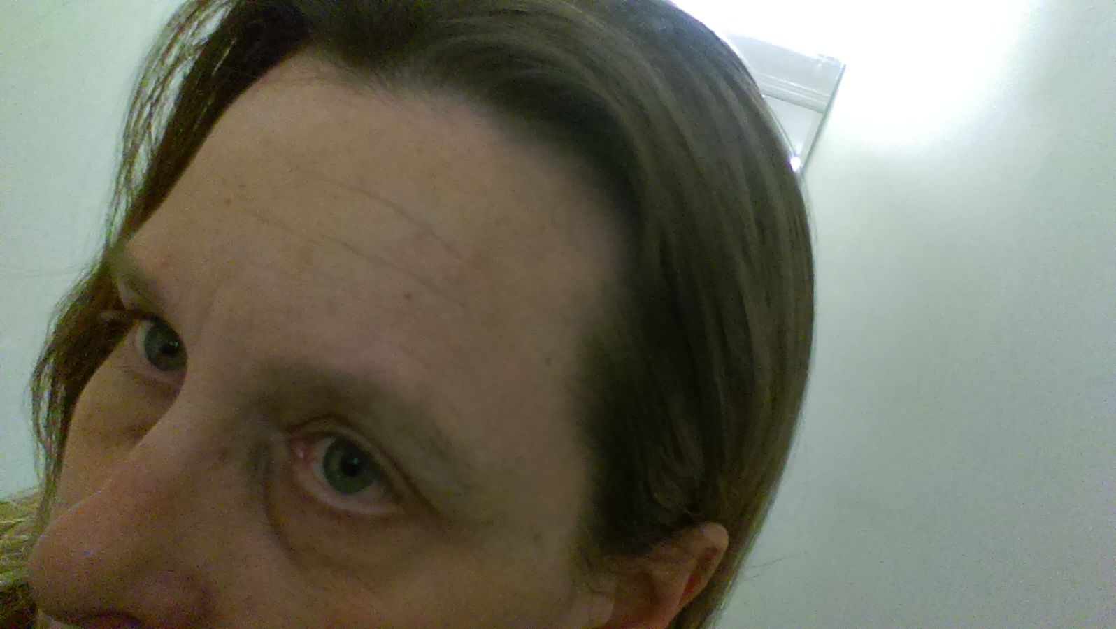 marks on forehead